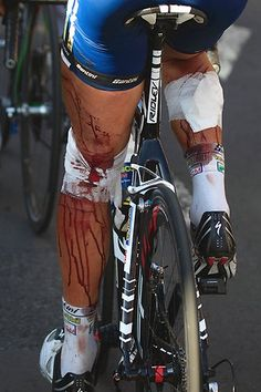 In the 2011 Tour De France Johnny Hoogerland was hit by a car and thrown into a barbed wire fence. But he finished the stage, claimed the polka-dot jersey, got 33 stitches, and rode Stage 10.. oh my goodness! i'd be like haha no