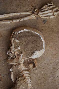Restos óseos de cadáver fenicio hallado en el Teatro Cómico (Cádiz)