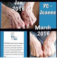 RF Hand Regimen is such a great idea for anyone on your Christmas List!!!  Mothers, Grandmothers, MIL❤️❤️❤️  Our hands are one of the first places to show signing of aging.  Most women are getting their nails done as well these days are affected by the drying lights too!  Another GO BLUE product!   Message me for all your perfect gift ideas!!!💙💙💙💙