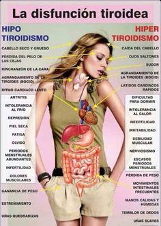 La Disfunsión Tiroidea