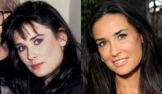 Demi Moore Plastic Surgery Procedures Breast Augmentation Botox Virginia Madsen Plastic Surgery Before And After Botox Injections Face Plastic Surgery, Bad Plastic Surgeries, Plastic Surgery Photos, Celebrities Before And After, Celebrity Plastic Surgery, Under The Knife, Botox Injections, Demi Moore