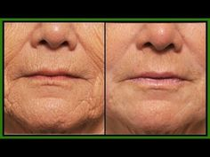 How To Remove Neck Wrinkles Permanently In 2 Months! Look 10 Years Younger Naturally - YouTube