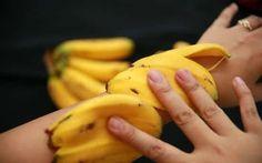 soigner le psoriasis avec peau de banane