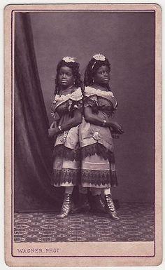 """Millie e Christine McCoy, gemelle siamesi nate in schiavitù e vendute al circo. Cantanti di talento, erano conosciute come""""L'usignolo a due teste"""""""