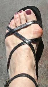 66eb0cb6138d9e This Bunion can make life a ruin  You have to care about your health Daily