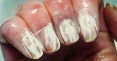 french nails oval Acrylics - french nails oval Acrylics - Care - Skin care , beauty ideas and skin care tips French Nails, French Tip Acrylic Nails, Glitter French Tips, French Tip Nail Designs, Almond Acrylic Nails, Almond Shape Nails, Best Nail Art Designs, Almond Nails, Acrylic Nail Designs