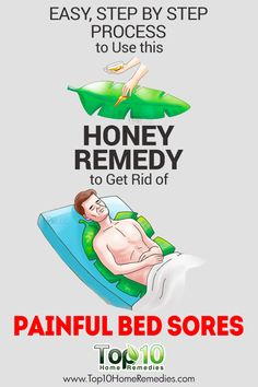 how to get rid of bed sores