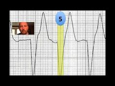 EKG/ECG Test: How Good Are You at 12 Lead Interpretation? This guy was my favorite speaker at the MAPA conference Ekg Interpretation, Diagram Chart, Pa School, Critical Care, Cardiology, Study Materials, Nurses, Labs, Conference