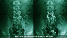 X-ray reveals the source of wisdom