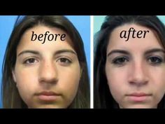 DIY: Nose Job (Smaller, Thinner Nose at HOME) - YouTube How To Get Fatter, How To Get Thin, Nose Contouring, Contour Makeup, Make Nose Smaller, 1000 Calorie Workout, Thin Nose, Nose Reshaping, Beauty Care