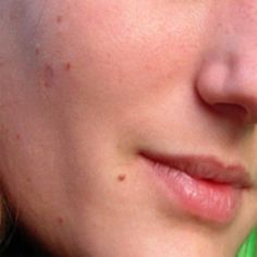 Natural Skin Tags Removal Methods