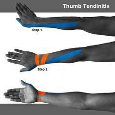 TAPING De Quervain's Tendinitis (De Quervain's Tendinosis)