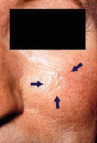 Morpheaform basal cell carcinoma (arrows), left cheek.