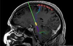 Parkinson hastasına uygulanan beyin pili - elektrod görüntüsü.