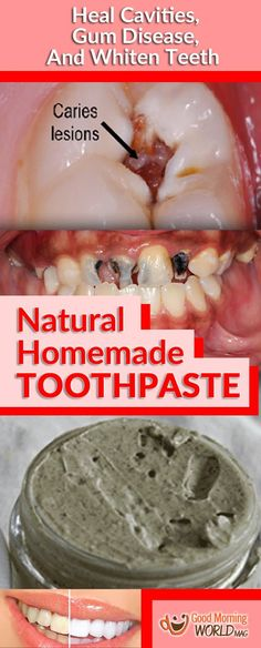 When you try this excellent natural toothpaste the first time, you will no longer buy all those expensive commercial toothpastes. There are some Ayurvedic toothpastes on the market, but this one is the most effective one and it contains neem (Azadirachta indica). It effectively treats gum issues and cavities, and supports teeth and gum health.…