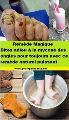 Dites adieu à la mycose des ongles pour toujours avec ce remède naturel puissant