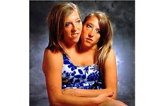 Abigail and Brittany Hensel, the twins conjoined at the neck