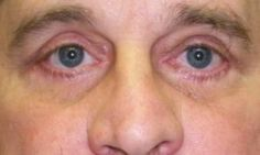 Cosmetic and Reconstructive Surgery of the eyelids, orbits and tear ducts Brow Lift Surgery, Droopy Eyelids, Eyebrows, Drooping Eyelids, Brows, Eye Brows, Eyebrow, Brow