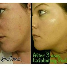 Amazing results  ✌ ❤ Save 40%!!! Ask me how!!  call/text SKIN CARE to (562)968-7494 or  visit http://laterewraps.myitworks.com #haveyoutriedthatcrazywrapthing #itworksglobal #health #livewell #natural #botanical #remedies #California #LosAngeles #USA #London #Europe #Australia #Canada #Germany #Denmark #Sweden #Switzerland #Spain #NewZealand #Whittier #UptownWhittier #laterewraps #sexy #bringIT #skincare