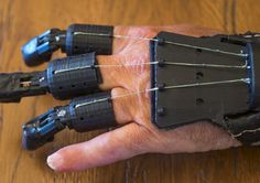 Man creates DIY prosthetic device after amputation