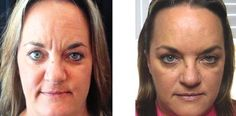 Crucial Natural Facelift Basics: Face Reflexology For Remedying Creases And Sagging Facial Tissue