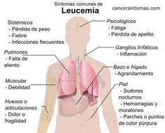 """sintomas de leucemia.-Los síntomas de leucemia (un tipo de cáncer de la sangre) comienzan a aparecer cuando el número de células cancerígenas (anormales) en la sangre crece y la médula ósea no puede fabricar las células normales de la sangre que el cuerpo necesita. La leucemia consiste en una sobreproducción de células anormales o que se """"atascan"""" en una fase temprana del proceso de maduración. Estas células leucémicas no son funcionales y no son capaces de hacer el trabajo de las células…"""