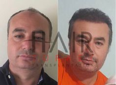 Before and After💫 Contact with hair transplantation coordinator on WhatsApp for more information; +905388817099 www.hairtransplantationatturkey.com #hairtransplant #hairtransplantation #fue #before #after #turkey #istanbul