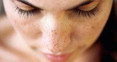 le-traitement-naturel-le-plus-efficace-contre-les-taches-brunes