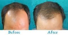 In addition, the stigma attached with locks loss, hair loss hair loss, and other forms of persistent locks loss can eventually diminish a person's self assurance  http://topservice4u.in/hair-transplant-surgeons-mumbai/