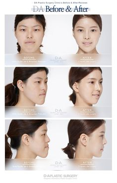 Jaw Surgery: Real DA patient before and after Ask inquiry/Make a reservation email: info-en@ Japanese Plastic Surgery, Double Jaw Surgery, Orthognathic Surgery, Aesthetic Dermatology, Cleft Lip, Aesthetic Clinic, Beauty Clinic, Old Tattoos, After Surgery