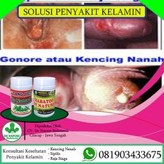 [licensed for non-commercial use only] / Nama Obat Gonore di Apotik Sign, Blog, Blogging