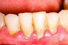 The secret to losing all your #teeth is to not get them cleaned every 3 to 6 months (depending on doctor's orders). Please call your #dentist today! #dental #dentistry #dentalhygiene #oralhealth