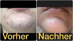 Hanf Feuchtigkeitscreme für unreine Haut – Cannabis Gesichtspflege bei Akne – Hanf Gesichtscreme gegen Pickel. Wer gewinnt den Kampf gegen Talgproduktion und Hautentzündungen? Lese hier welche Erfolge wir gesehen haben mit Hanf Pflegeprodukten Cannabis, Business, Hemp, Beauty Products, Pimple, Ganja
