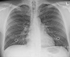 Farmaci innovativi: ecco perché ci sono nuove speranze per i malati di tumore al polmone
