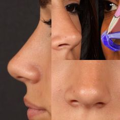 Things That You Need To Know When It Comes To Plastic Surgery. Reconstructive surgery is something that has been performed throughout the ages, but it has grown in popularity in recent times. Nose Plastic Surgery, Nose Surgery, Pretty Nose, Nose Reshaping, Nose Shapes, Beauty Clinic, Cosmetic Procedures, Rhinoplasty, Tips Belleza