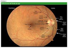 Explicación del fondo de ojo