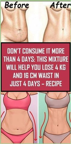 Don�t Consume It More Than 4 Days This Mixture Will Help You Lose 4kg and 16cm Waist in Just 4 Days Natural Remedies For Allergies, Natural Headache Remedies, Natural Remedies For Anxiety, Healthy Skin Care, Healthy Tips, Healthy Quotes, Healthy Brain, Healthy Women, Stay Healthy
