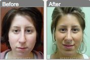 Wow! What a difference a chin implant can make!