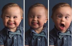 0706c685704c3 204 Best DownSyndrome images | Down syndrome people, Babies with ...