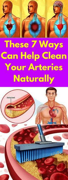 The largest cause of death in the United States of America is the cardiovascular disease. However, that should not worry you because the good news is that you can avoid that.All you need to do is to take care of your arteries. If there is fat and cholesterol build up on the walls of your …