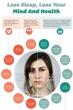 Horrfying Infograph Of What Sleep Deprivation Does To Your Body Sleep Dream, Need Sleep, Home Body Weight Workout, Brain Sleep, Sleep Men, Health And Wellness, Health Tips, All Jokes, Lose Your Mind