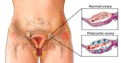 Worried About Ovarian Cysts? Check Out These 6 Natural Remedies! #news #alternativenews