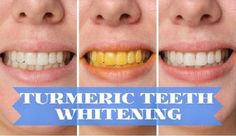 Teeth Whitening Remedies Whiten Teeth with Turmeric - If you are looking for natural teeth whitening that works, you are in the right place. Our post includes home remedy ideas you will love to try. Teeth Whitening That Works, Teeth Whitening Remedies, Natural Teeth Whitening, Whitening Kit, Aloe Vera, Get Whiter Teeth, Coconut Oil For Teeth, Stained Teeth, Beauty Tips
