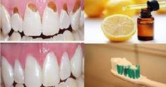 Prevent Tooth Decay, Protect Your Enamel and Make Your Teeth Strong With Only Two Ingredients
