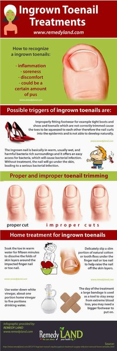 Ingrown toenail cure #ingrown #toenail #remedies http://www.remedyland.com/2013/11/ingrown-toenail-onychocryptosis-treatment-surgery-infection-removal-home-remedies.html