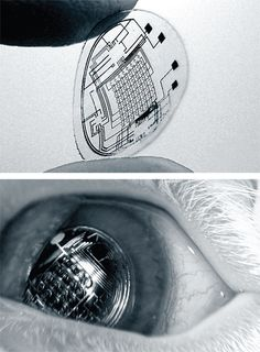 Bionic Contact Lenses. The technology was trialled at the University of Washington in Seattle, and currently they're safe and feasible, but lacking a good power source and only have a single-pixel display. But give it a few years.
