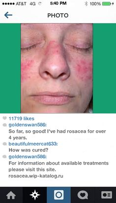 Best Eye Drops For Ocular Rosacea 111506 - Rosacea. You have nothing to lose! Visit Site Now.