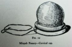 An Illustration of the Mizpah Pessary.