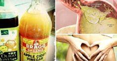 O milagre do emagrecimento rápido com vinagre de maçã e mel