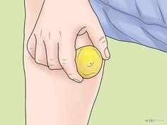 Métodos para eliminar cicatrices de las piernas